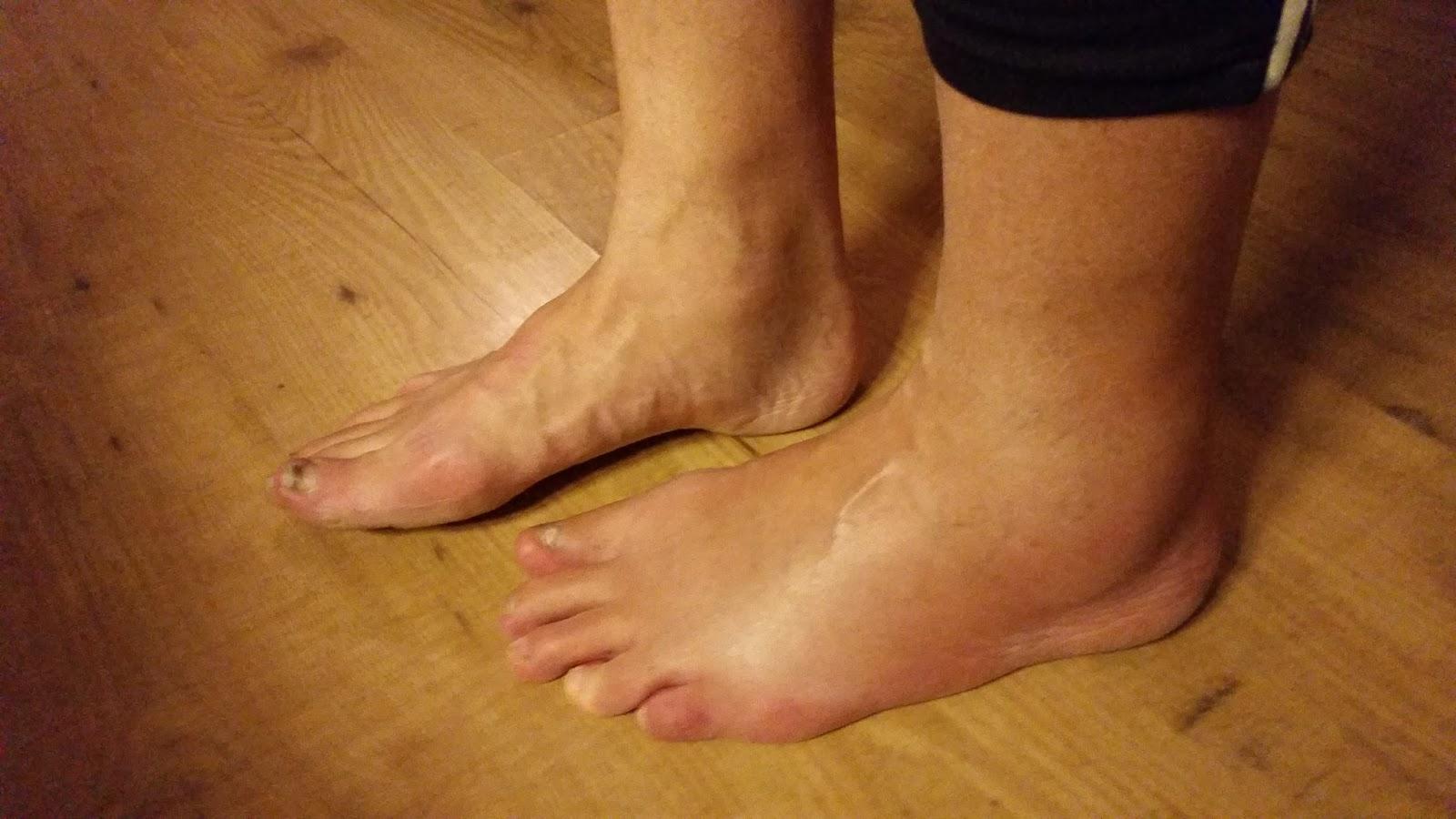 opgezwollen voet PD